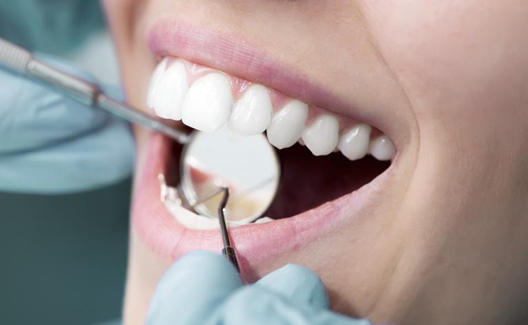 Good Dental Hygiene at Crescent Lodge Dental Practice South West London