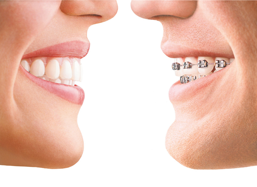 Orthodontics South West London | Crescent Lodge Dental Practice