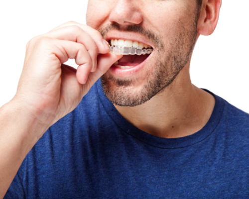 How Can I Straighten My Teeth Discreetly In South West London?