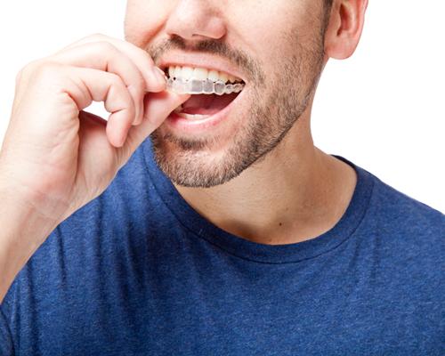 Teeth Straightening in Clapham