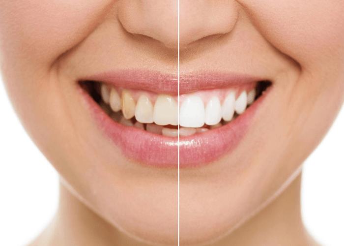 Oral Hygiene | Dental Practice | Clapham Common