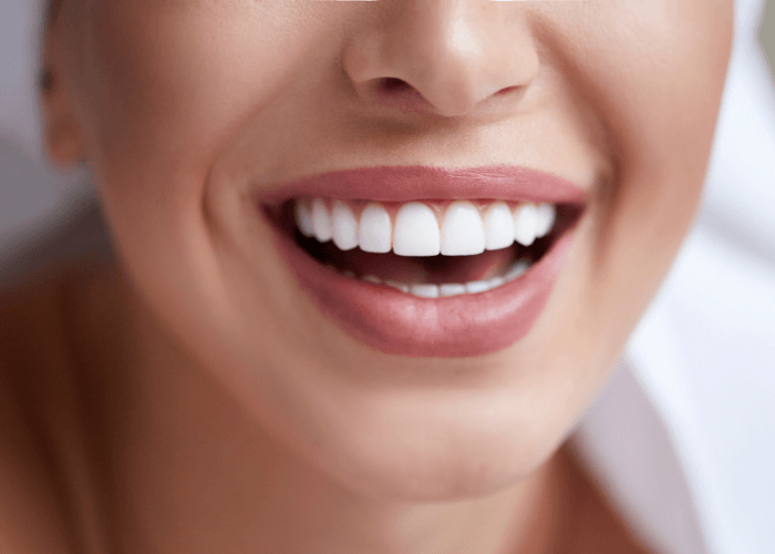 Dental Treatments London
