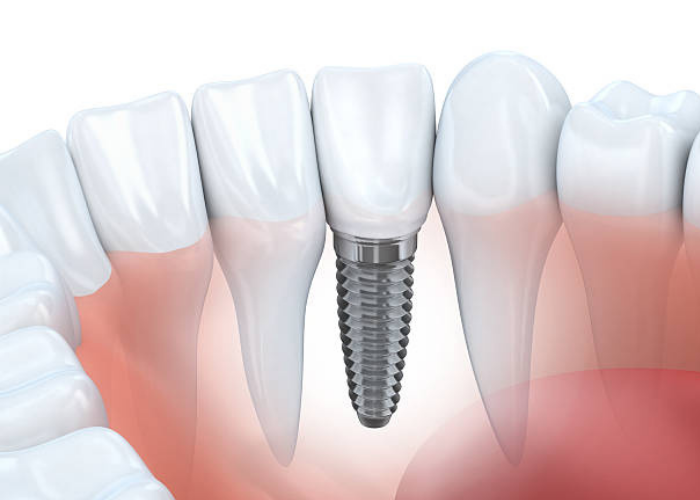 Dental Implants | Clapham Common, London