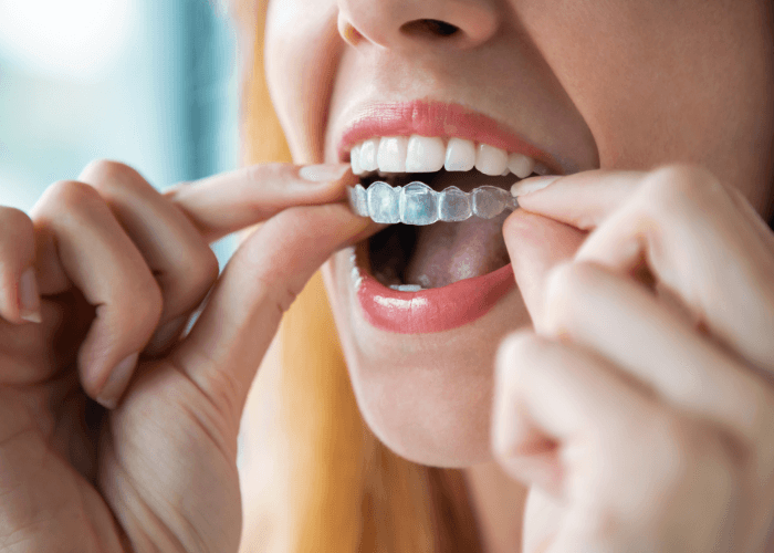 Woman putting Invisalign aligners into her mouth